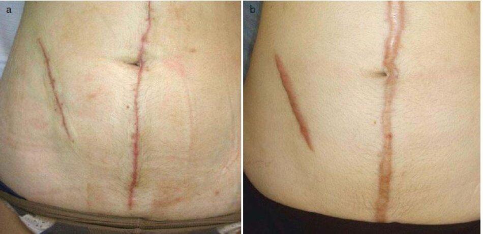 Fig. 3.1 Chuyển đổi sẹo thường thành sẹo phì đại. (a) Mười ngày sau khi phẫu thuật, (b) Sáu tháng sau phẫu thuật