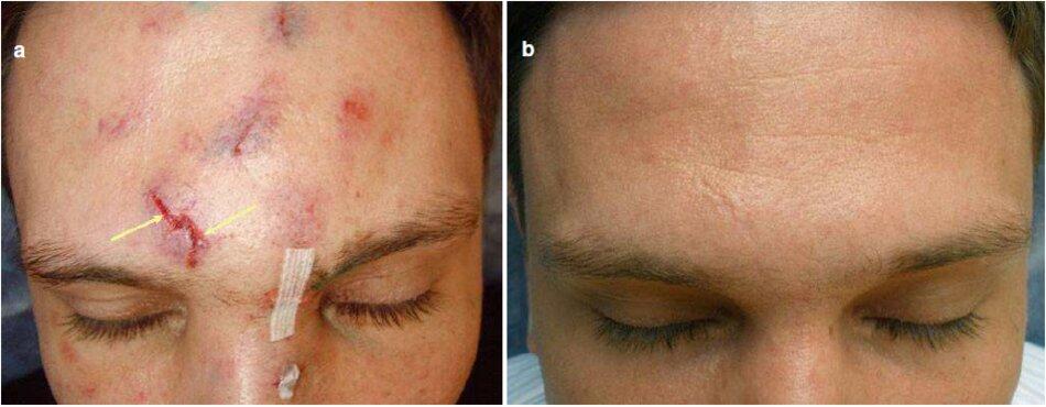 Fig. 3.12 các vết thương nhỏ sau chấn thương của vùng trán và mũi (a) Trước khi điều trị. (b) Trong quá trình này. Ba tháng sau. (ca) Sau khi điều trị