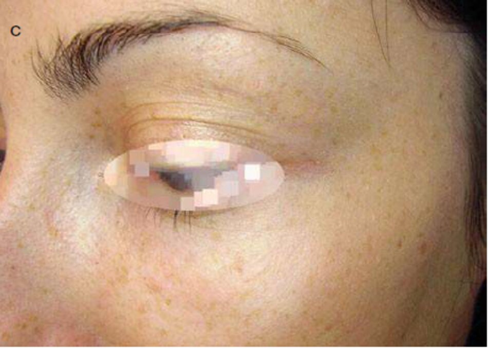 Fig. 3.16 Vết sẹo khâu san phẫu thuật vùng dưới ổ mắt. (a) Trước khi điều trị. (b) Trong quá trình này. Năm tháng sau. (c) Sau khi điều trị. Mười một tháng sau