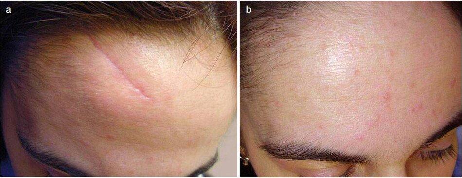 Fig. 3.18 Sẹo thường vết khâu sau chấn thương ờ chán, (a) Trước đây. (b) Sau 5 tháng