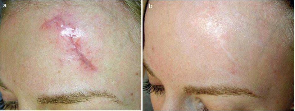 Fig. 3.23 Sẹo trán sau chấn thương . (a) Trước khi điều trị- (b) Sau 8 tháng điều trị