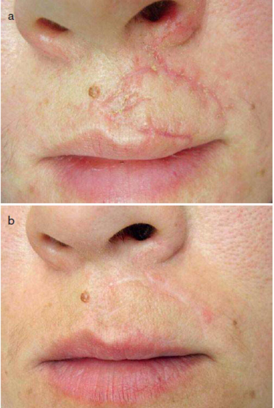 Fig. 3.27 Sẹo mòi trên sau chấn thương, (a) trước điều trị. (b) sau 7 tháng điều trị