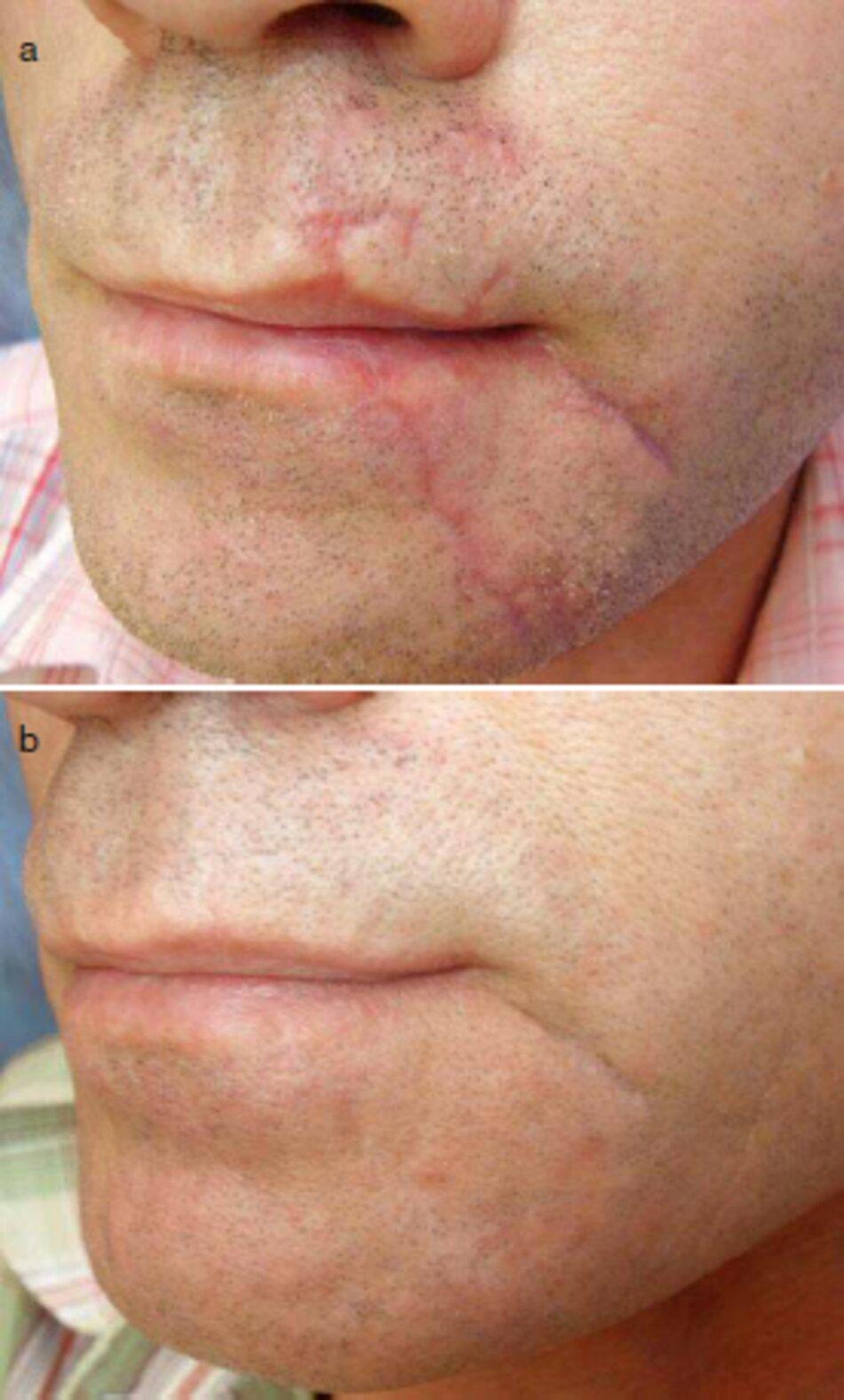 Fig. 3.28 Sẹo vùng quanh miệng và vùng cằm sau chấn thương. (a) trước điều trị. (b) sau hai năm điều trị