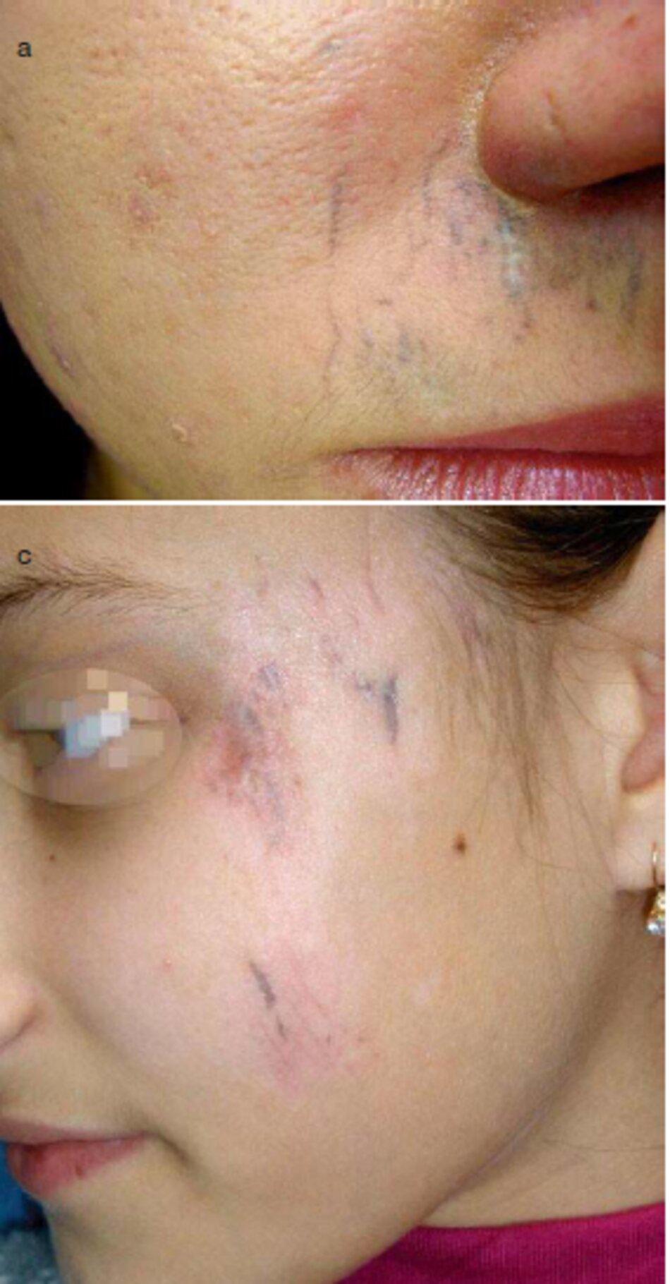 Fig. 3.29 Sẹo đỏng cặn sau khi bị tai nạn xe đạp. (a) Sẹo đóng cặn ở vùng môi trên, (bị) Sẹo đóng cặn ở vùng cẳng chân phái, (c) Sẹo đóng cặn ở vùng khuôn mặt bên trái