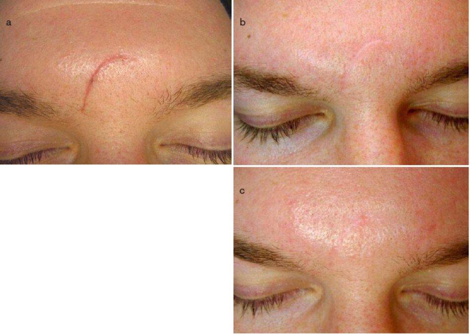 Fig. 3.19 Sẹo sau chấn thương vùng giữa chán (giai đoạn điều trị), (a) Trước đây. (b) Trong quá trình này. Sau hai thú tục Microdermabrasion. (c) Sau khi điềuFig. 3.19 Sẹo sau chấn thương vùng giữa chán (giai đoạn điều trị), (a) Trước đây. (b) Trong quá trình này. Sau hai thú tục Microdermabrasion. (c) Sau khi điều trỊ. Sáu tháng sau trỊ. Sáu tháng sau