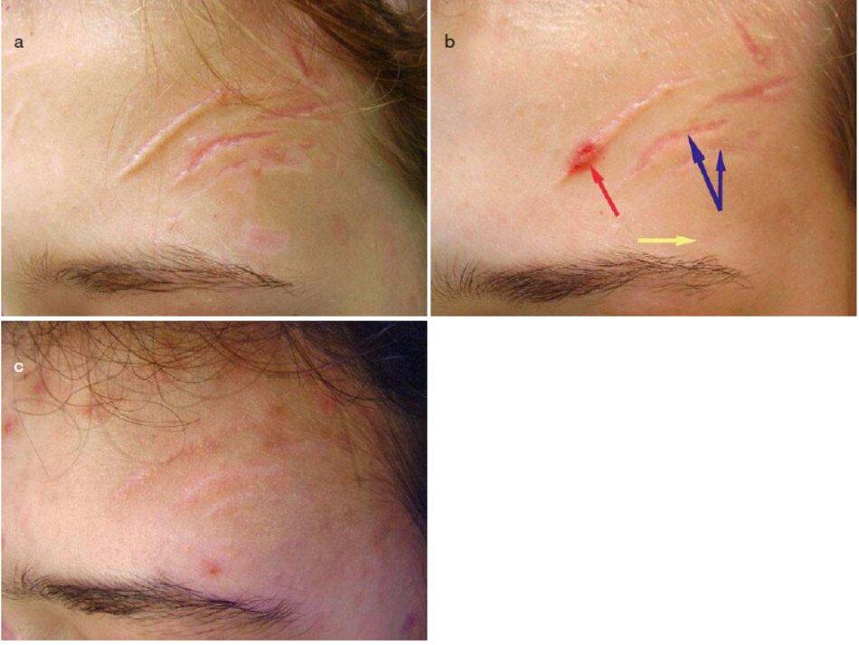 Fig. 4.10 Sẹo hỗn hợp sau chấn thương trán bên trái, (a) Trước đây. (b) Sau khi microdermabrasion, (c) Sáu tháng sau khi microdermabrasion và cryo destruction