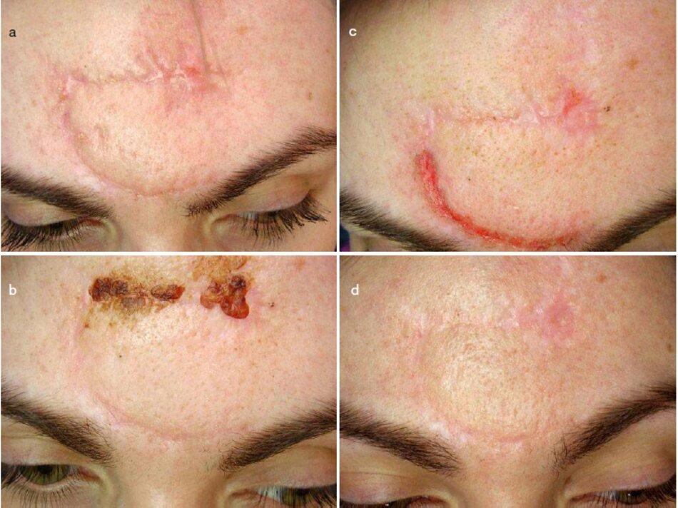 Fig. 4.12 Sẹo mới vùng da trán sau cắt bỏ rộng vùng u ác tính, Các giai đoạn điều trị. (a) Trước khi điều trị. (b) Cryodestruction. (c) Microdermabrasion, (d) Sáu tháng sau