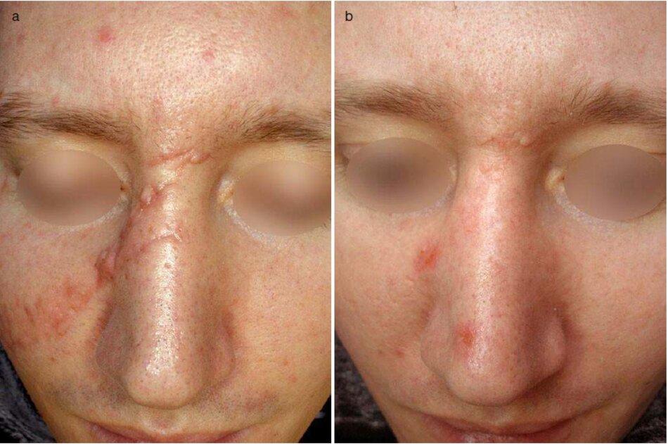 Fig. 4.15 Vết sẹo mới của sống mũi và má phải sau chấn thương, (a) Trước khi điều trị. (b) Một năm sau đó. (c) Trước khi điều trị. (d) Một năm sau đó. (e) Trước khi điều trị. Ảnh phóng to. (f) Một năm sau đó. Ảnh phóng to