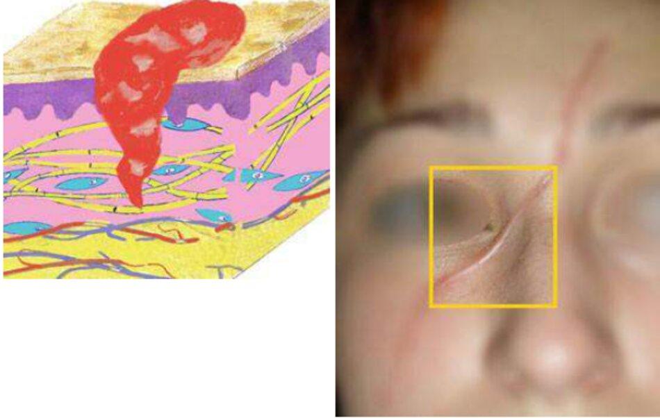 Fig. 4.3 Phân đoạn phi đại của vết sẹo hỗn hợp