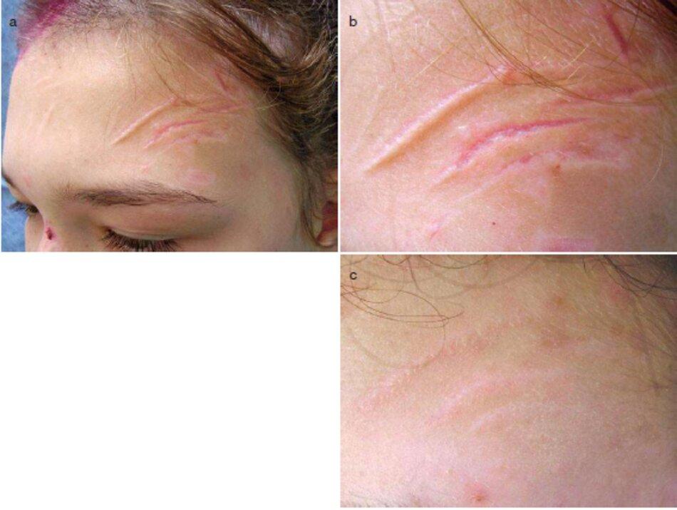 Fig. 4.9 Sẹo hỗn hợp sau chấn thương trán bên trái, (a) Trước khi điều trị. Ảnh toàn cảnh, (b) Trước khi điều trị. Ảnh phóng to. (c) Sau khi điều trị. Ảnh phóng to