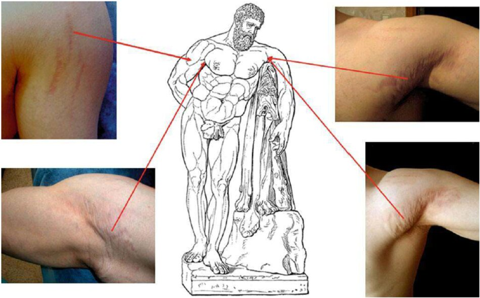 Fig. 1.93 vết rạn da do tập thể hình