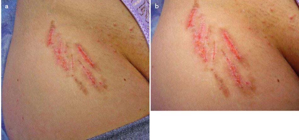 Fig. 1.97 Các vết rạn da hông phải sau khi sử dụng microdermabrasion. (a) Ảnh toàn cảnh, (b) Ảnh phóng to