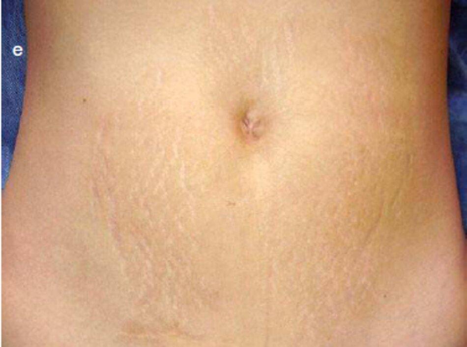 Fig. 1.99 Axit Trichloroacetic (TCA) lột 50% vết rạn bụng., ra) Trước khi hiệu chỉnh, (b) Ngày hôm sau sau khi lột. (c) Bốn ngày sau khi lột. (d) Mười ngày sau khi lột. (e) 1.5 năm sau một thủ thuật