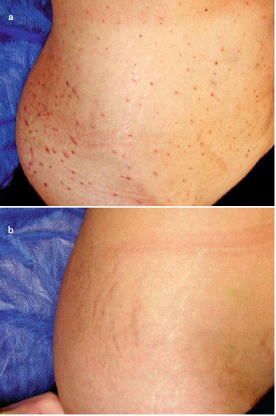 Fig. 1.101 Điều trị Mesotherapy của vết rạn da vùng sườn hòng, (a) Trong quá trình điều chỉnh, (b) Hoàn thành thủ thuật