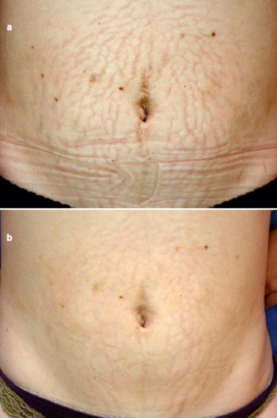 Fig. 1.104 vết rạn da tươi vùng bụng . Liệu pháp Lăn kim. (a) Trước khi điều trị. (b) Ba tháng sau thủ thuật đầu tiên
