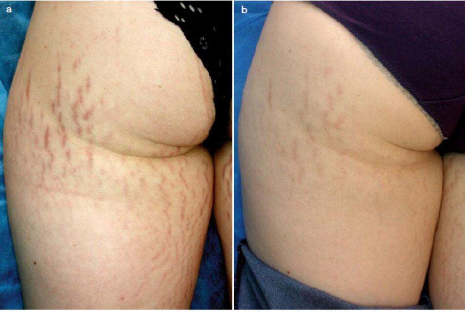 Fig. 1.105 Dầu vết câng mới của hồng trói, trị liệu Lăn kim cộng với chăm sóc tại nhà. (a) Trước khi điều trị. (b) Ba tháng sau lần chăm sóc đầu tiên cộng với chăm sóc tại nhà