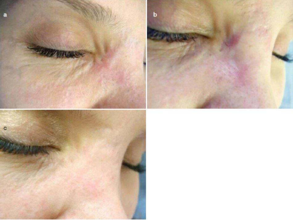Fig. 2.30 Vết thương sau chấn thương trên góc giữa của mắt. Tiêm Corticosteroid và điều trị bằng laser mạch máu. (a) Trước khi điều trị. (b) Sau hai lần tiêm corticosteroid, (c) Sau khi điều trị bằng tia laser và điều trị bằng laser mạch máu