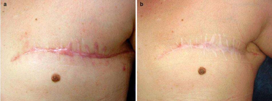 Fig. 2.33 Sẹo sau phẫu thuật cắt bỏ vú bên trái trước và sau khi điều trị bằng tấm silicon trong 14 giờ / ngày trong 8 tháng, (a) Trước đây. (b) Sau 8 tháng