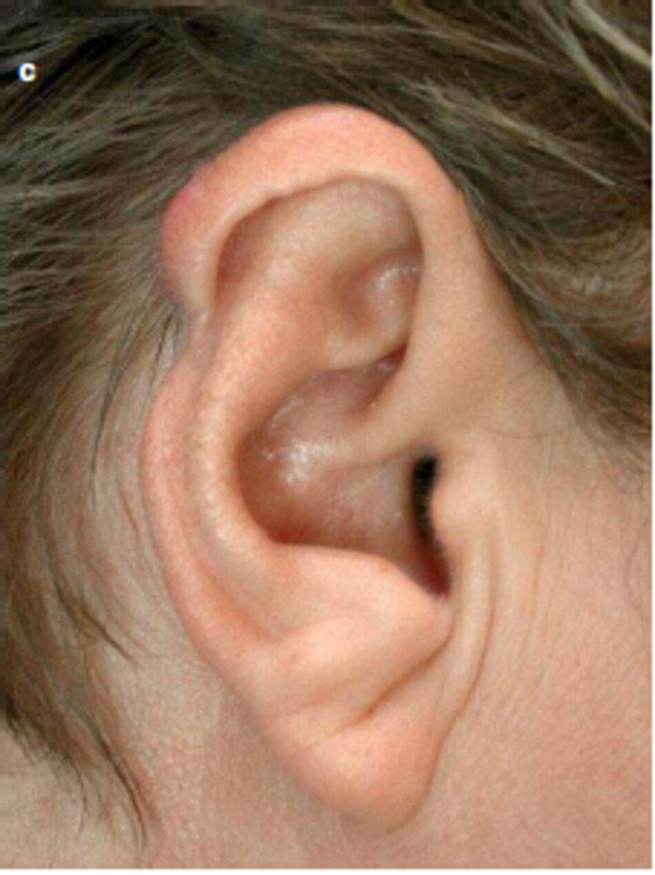 Fig. 2.45 Tái phát của sẹo lồi vành tai sau khi cắt bỏ phẫu thuật, (a) Trước khi điều trị. (b) Trong quá trình xử lý. Một tháng sau. (c) Sau khi điều trị. sáu tháng sau khi bắt đầu điều trị
