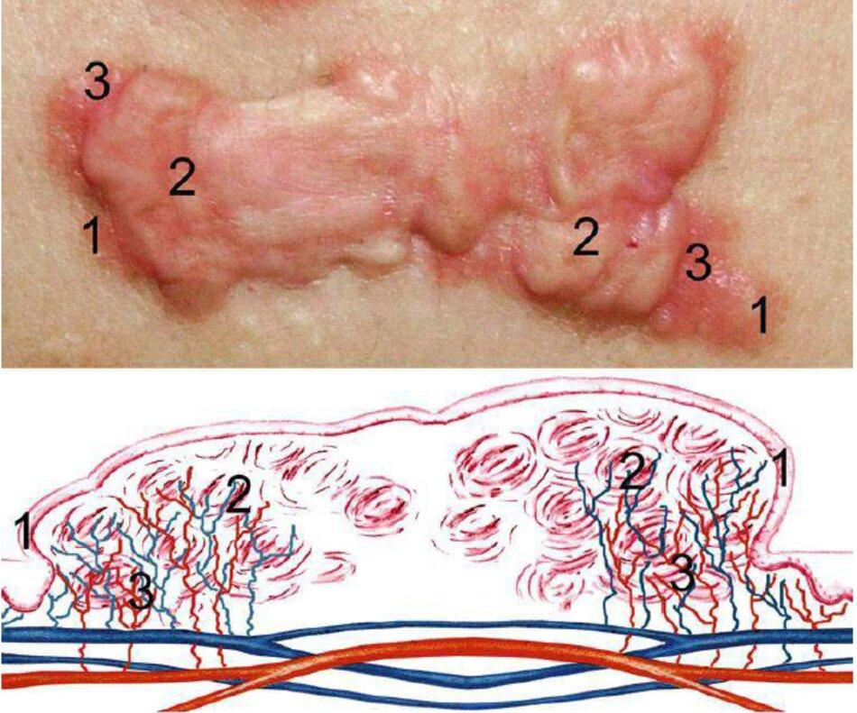 Fig. 2.49 Sẹo lồi hoạt động, sơ đồ.1 Khu tăng trưởng của sẹo lồi, 2 Tập hợp các nút collagen, 3 Khu vực tăng sắc tố