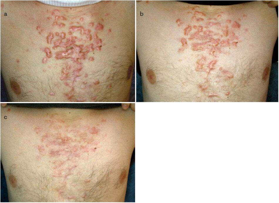 Fig. 2.54 Nhiều sẹo lồi ở ngực sau khi bị mụn. (a) Trước đây. (b) Trong quá trình này. Sáu tháng sau. (c) Sau 1,5 năm