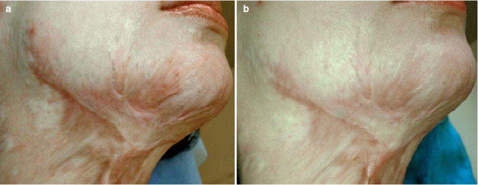Fig. 2.68 Vết sẹo lồi bỏng ở cố, cằm, và hàm dưới trong giai đoạn trưởng thành (tái phát triển), (a) Trước khi điều trị. (b) Bổn tháng sau lần điều trị tăng sinh collagen đầu tiên (CIT) 2.0 mm
