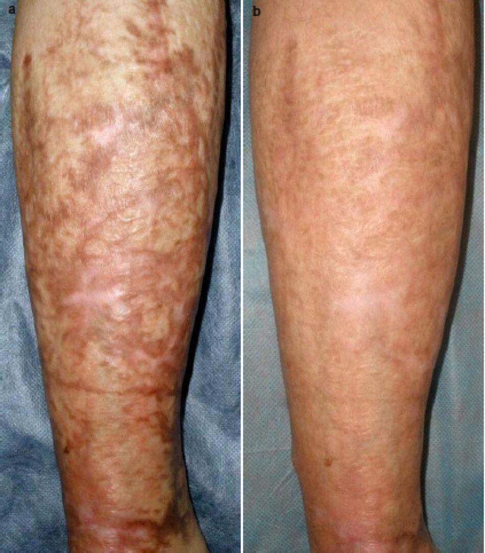 Fig. 2.69 Sẹo phì đại cũ do bỏng, sẹo tăng sắc tố trên bề mặt sau của bắp chân bên trái, (a) Trước khi điều trị. (b) Tám tháng sau thủ tục đầu tiên