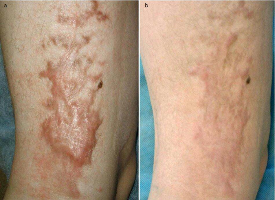 Fig. 2.70 Sẹo lồi sau khi bỏng trên đùi. (a) Trước khi điều trị. (b) Mắn tháng sau thủ tục đầu tiên