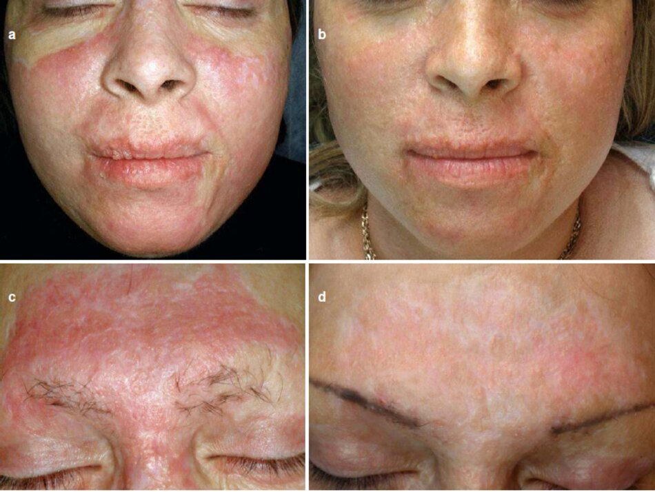 Fig. 2.71 Vết sẹo phì đại trên khuôn mặt bị bỏng . (a) Trước khi điều trị. (b) Bảy tháng sau khi làm thủ thuật, (c) Trước khi điều trị. (d) Bảy tháng sau thủ thuật