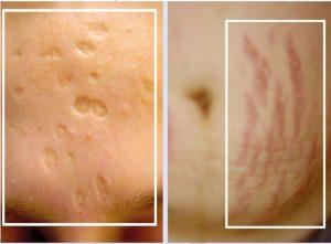 Sẹo teo: yếu tố hình thành, phân loại và phương pháp điều trị