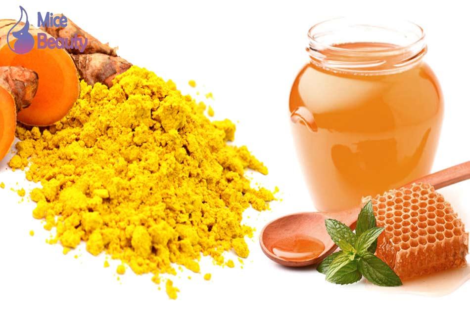 Cách trị thâm mụn bằng mật ong và bột nghệ