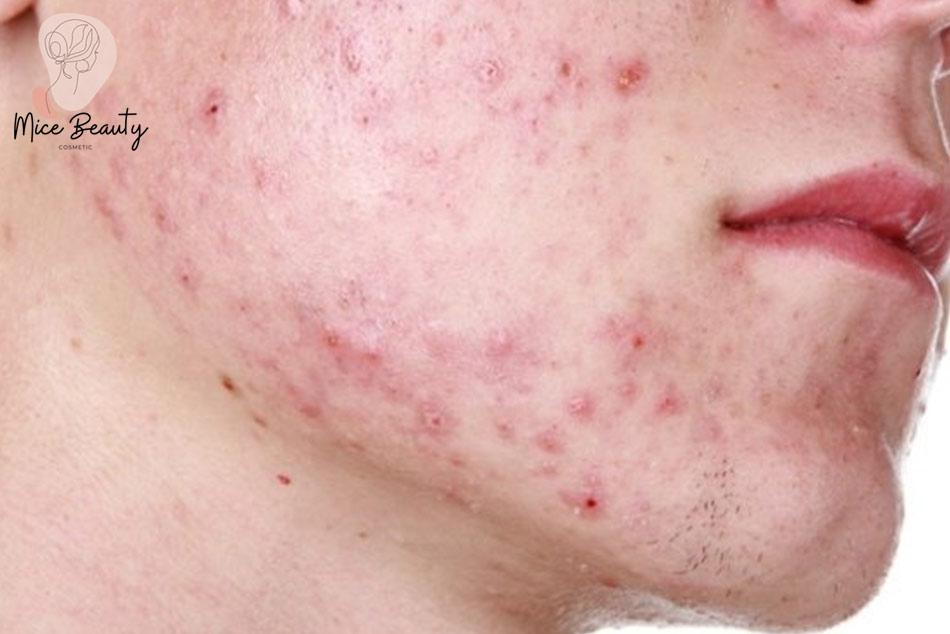 Những lưu ý khi trị sẹo đỏ trên mặt