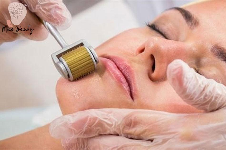 Phương pháp lăn kim trị sẹo thâm
