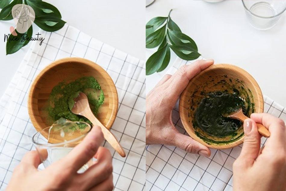 Trị sẹo rỗ bằng mặt nạ dầu dừa và bột trà xanh