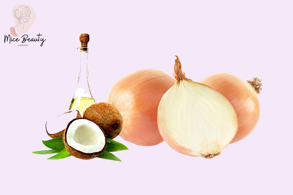 Dầu dừa kết hợp với hành tây - Công thức trị sẹo thâm bằng dầu dừa hiệu quả