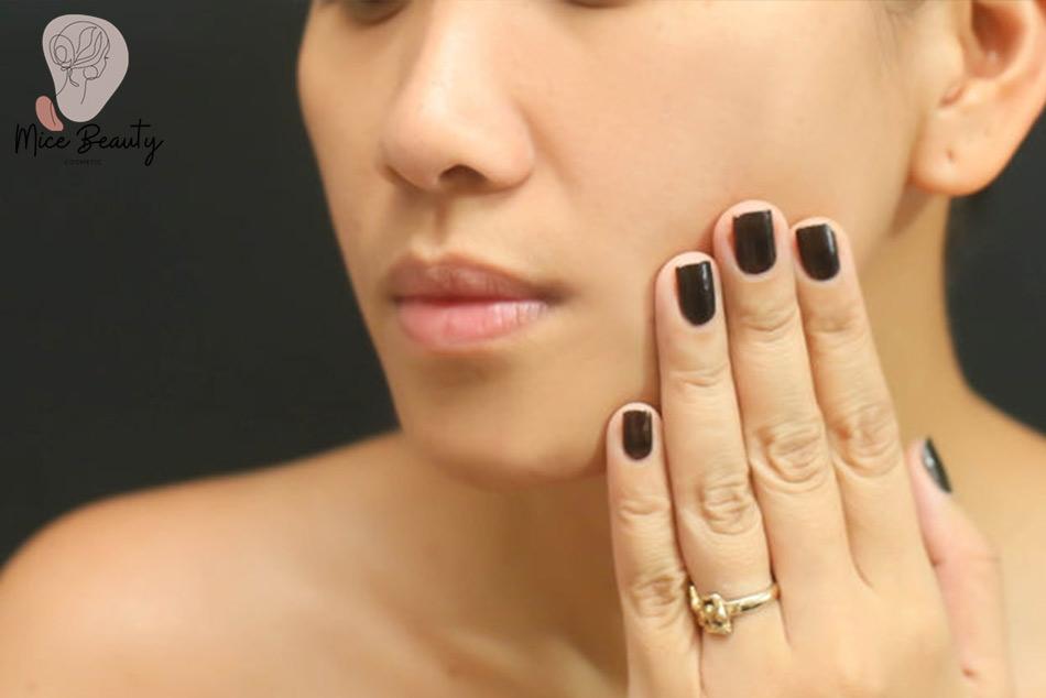 Thường xuyên chạm tay lên mặt là một trong những nguyên nhân gây ra mụn ẩn