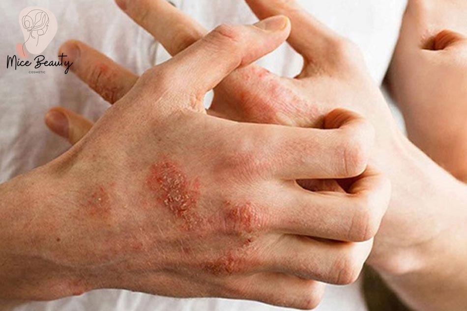 Dị ứng là điều kiện thuận lợi để mụn viêm hình thành.