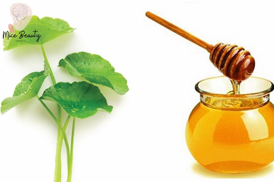 Kết hợp rau má và mật ong trị mụn thâm