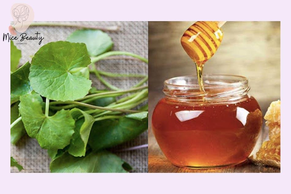 Mẹo sử dụng rau má và mật ong nguyên chất trị sẹo thâm