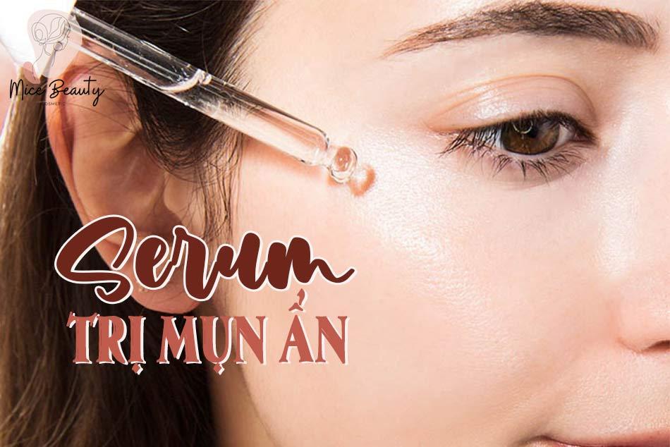 Top 4 các loại serum trị mụn ẩn tốt nhất hiện nay