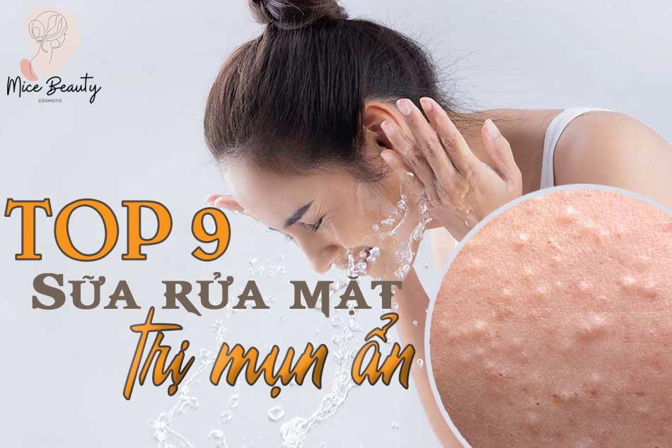 Top 9 Sữa rửa mặt trị mụn ẩn hot nhất hiện nay