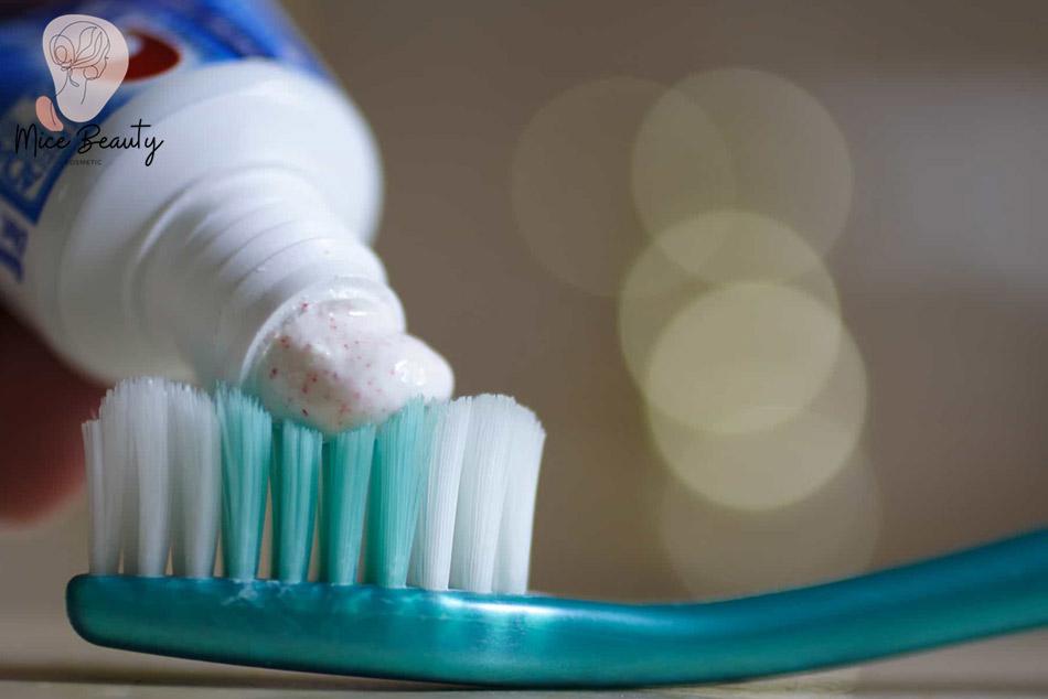 Trị mụn ẩn bằng kem đánh răng