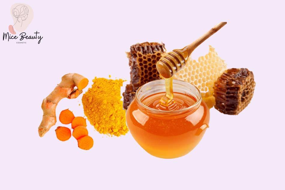 Trị sẹo lồi bằng mật ong và nghệ tươi