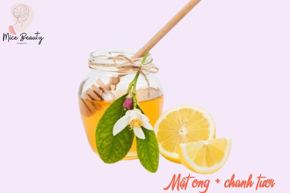 Kết hợp chanh tươi và mật ong trị sẹo thâm hiệu quả