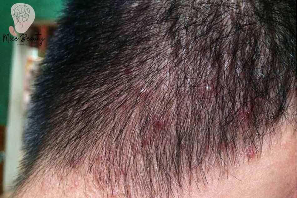 Nguyên nhân gây ra mụn trứng cá trên da đầu