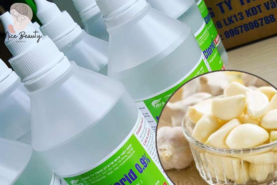 Nước muối sinh lý kết hợp với tỏi trị mụn bọc