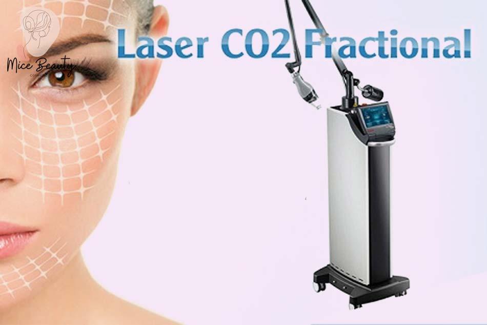 Trị thâm mụn an toàn bằng phương pháp Laser Fractional CO2